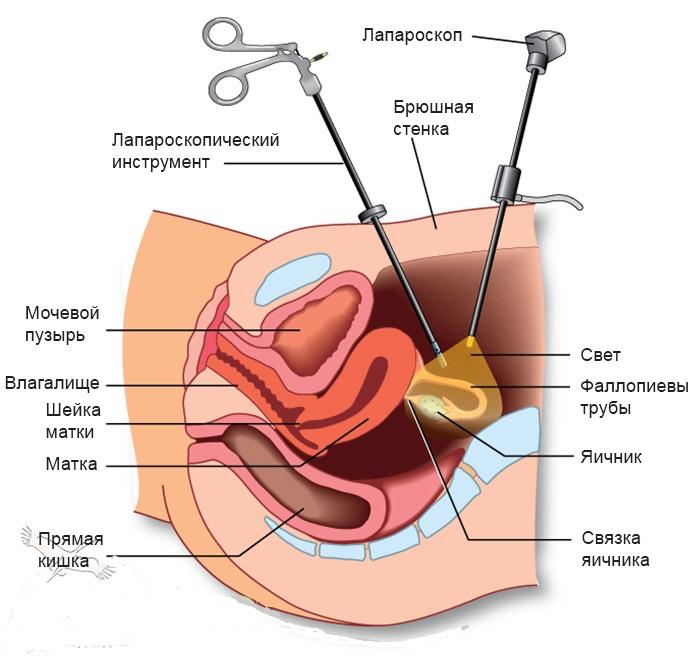 seksualnaya-zhizn-pri-miome